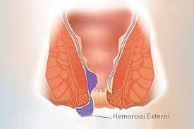 Metode de tratament pentru hemoroizii externi