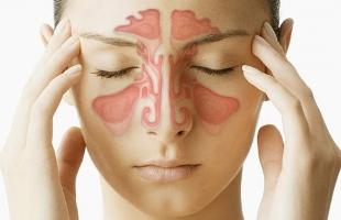 4 remedii eficiente pentru a scapa rapid de sinuzita