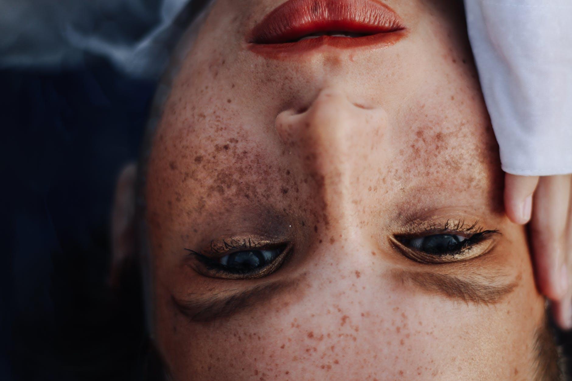 Vitiligo - Cauze si simptome