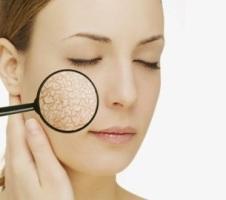 5 remedii naturale pentru hidratarea pielii uscate