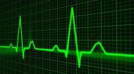 10 mituri legate de bolile cardiovasculare