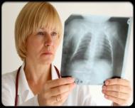 Cate persoane sufera de astm in Romania