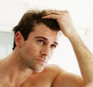 Calvitia la barbati si la femei